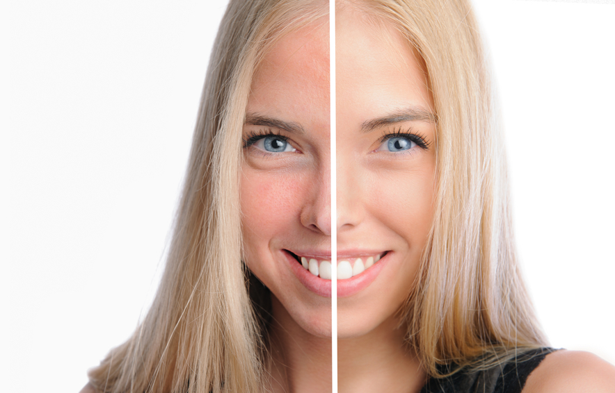 Every Anti-Aging Skin Care Routine MUST Include This – Benefits of Hyaluronic Acid